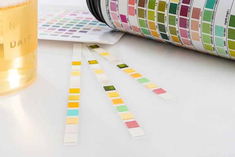 pH Sensoren oder Teststreifen? Für die meisten nichtprofessionellen Anwendungen war daher das Teststreifen-Verfahren üblich. (#02)